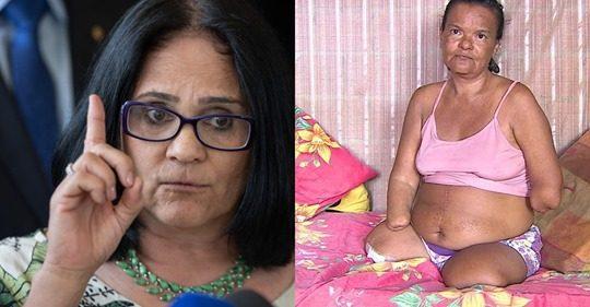 Damares vai atrás de mulher sem mãos e pernas que teve benefício negado pelo INSS